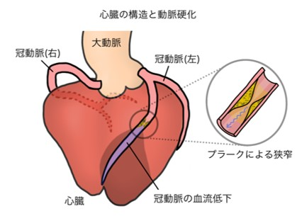 心臓の構造と動脈硬化